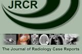 JRCR - Journal of Radiology Case Reports