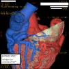 Chest & Cardiac Imaging