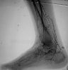 Corkscrew collaterals in Buerger disease
