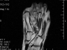 Musculoskeletal Imaging