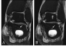 """Intraosseous<br />""""Lipoma"""" of the<br />Calcaneus Developing<br />in an Intraosseous<br />Ganglion Cyst"""