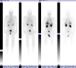 Carcinoid tumor metastatic to liver seen on Octreotide scan