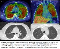 Intravascular Large B-Cell Lymphoma Presenting with Diffusely Increased Pulmonary FDG Up-take withou