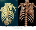 Multifocal Chest<br />Wall Hamartoma: A<br />Rare Congenital<br />Anomaly